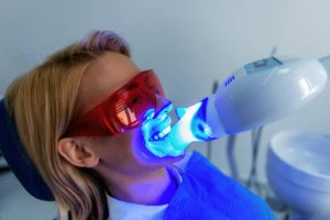 Adelaide teeth whitening